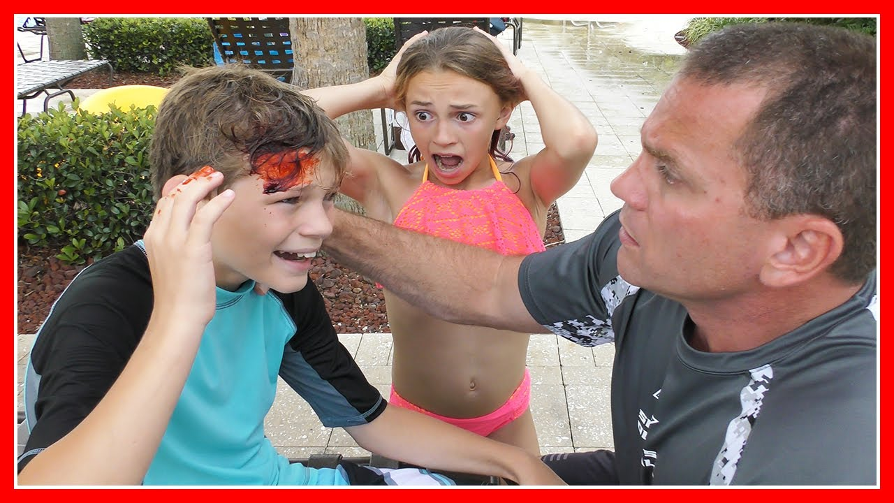 😱SWIMMING POOL INJURY PRANK😱| We Are The Davises